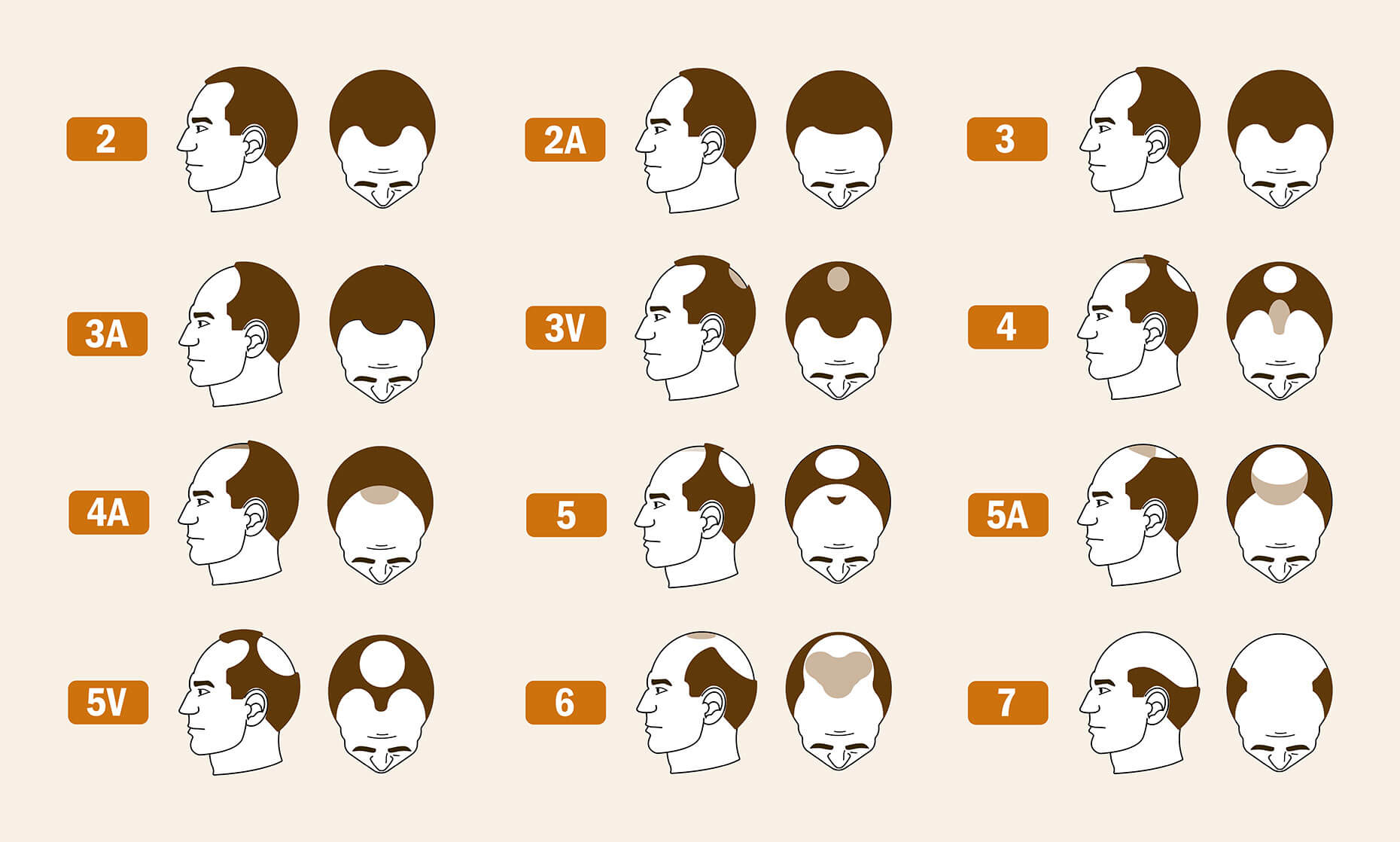 The Norwood-Hamilton stages of hair loss, broken down into 12 pairs of images