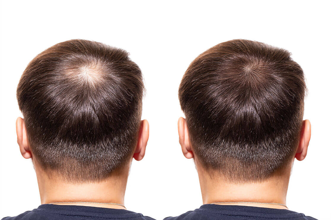Two pictures of the same man's head, where the photo on the left shows hair loss at the crown and the photo on the right shows no hair loss