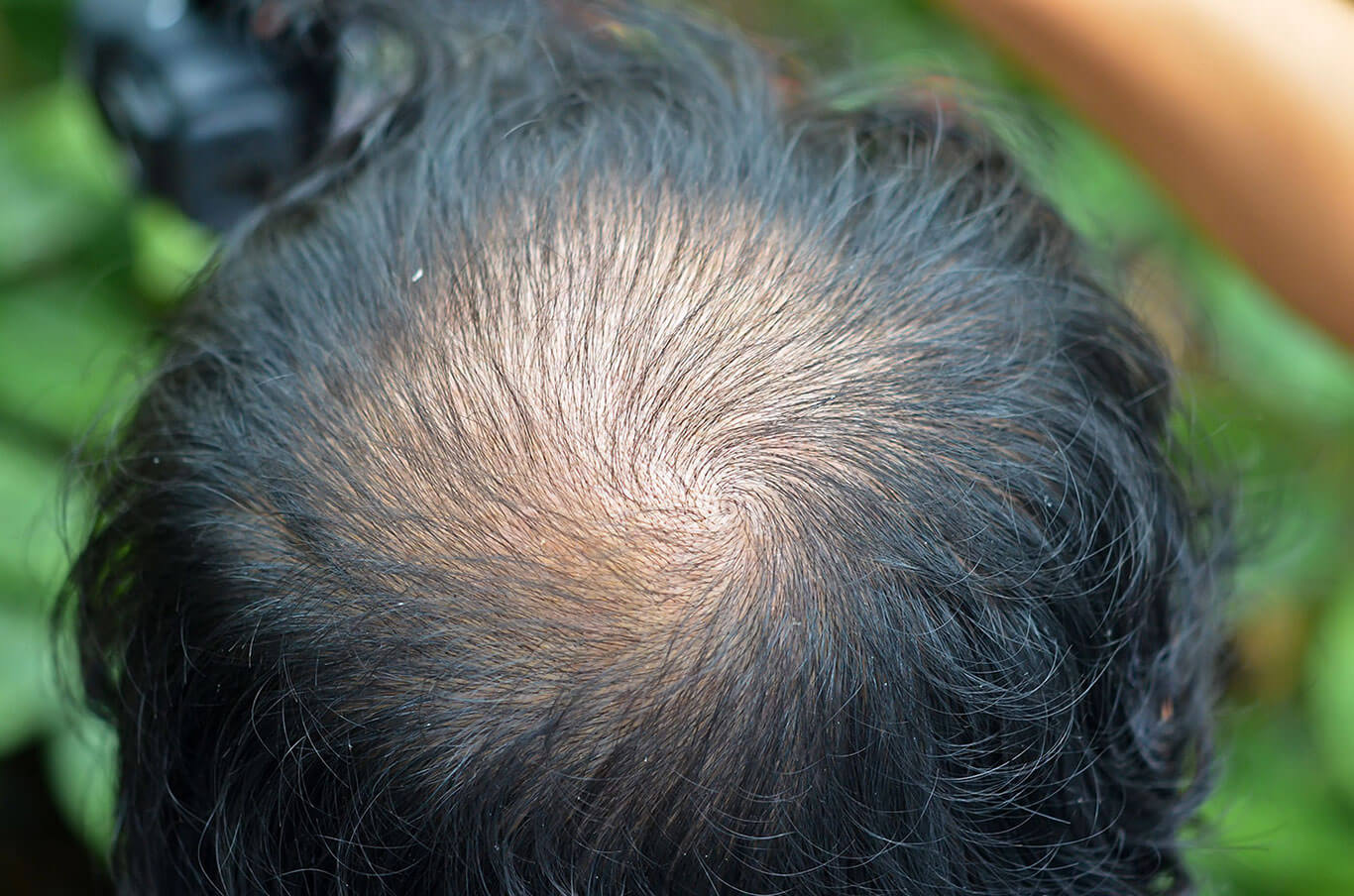 A close-up of the back of a man's head, showing hair loss at the crown
