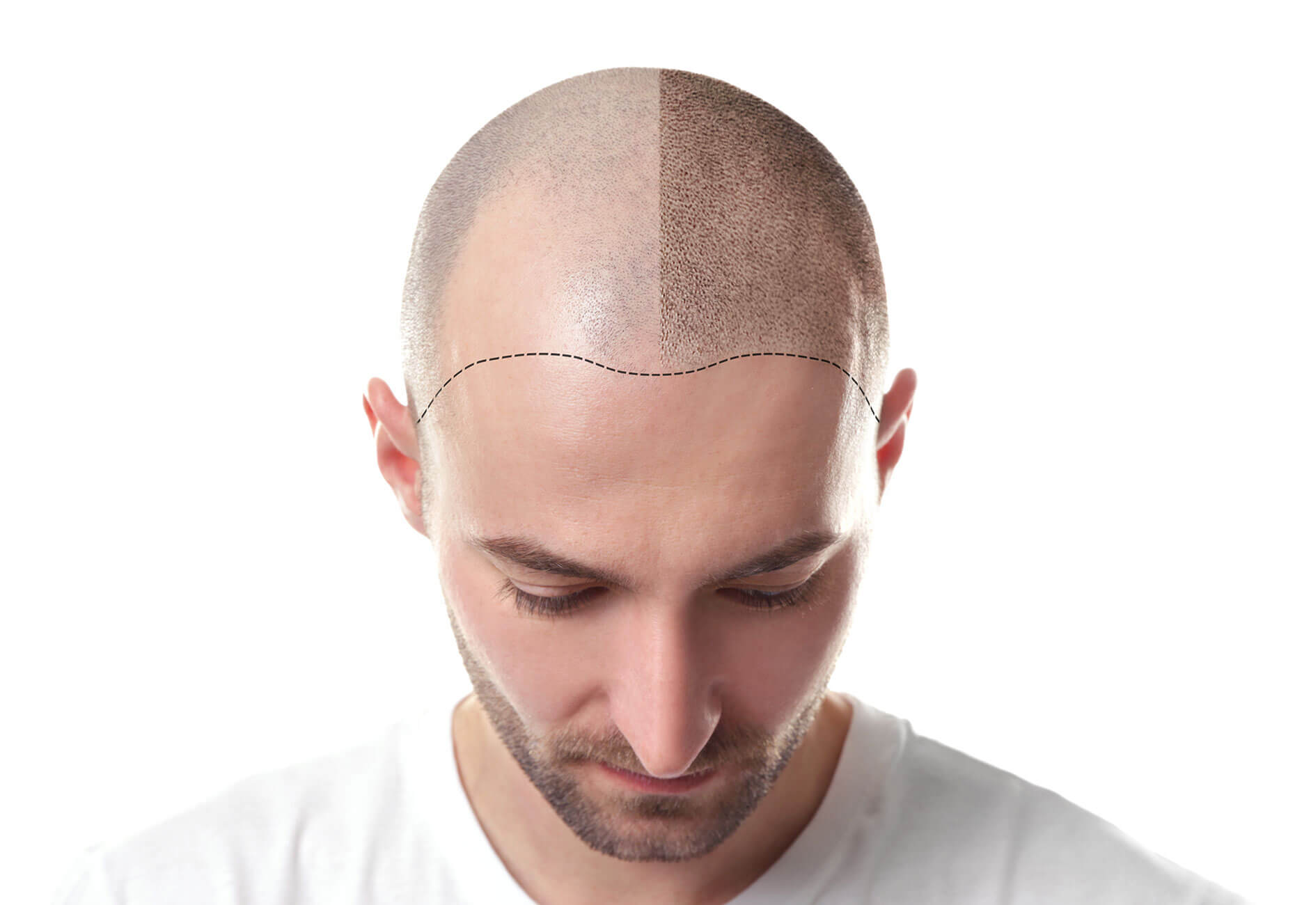 A man's head, showing an outline where the right half of his head has a normal hairline and the left half of his head has temple baldness