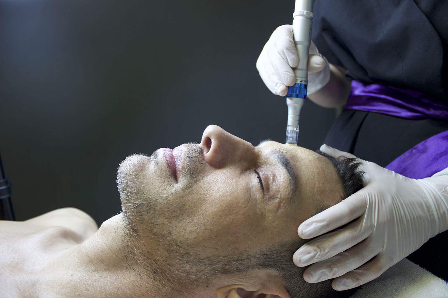 A clinician applies a microneedling device to the hairline of a man who is laying down