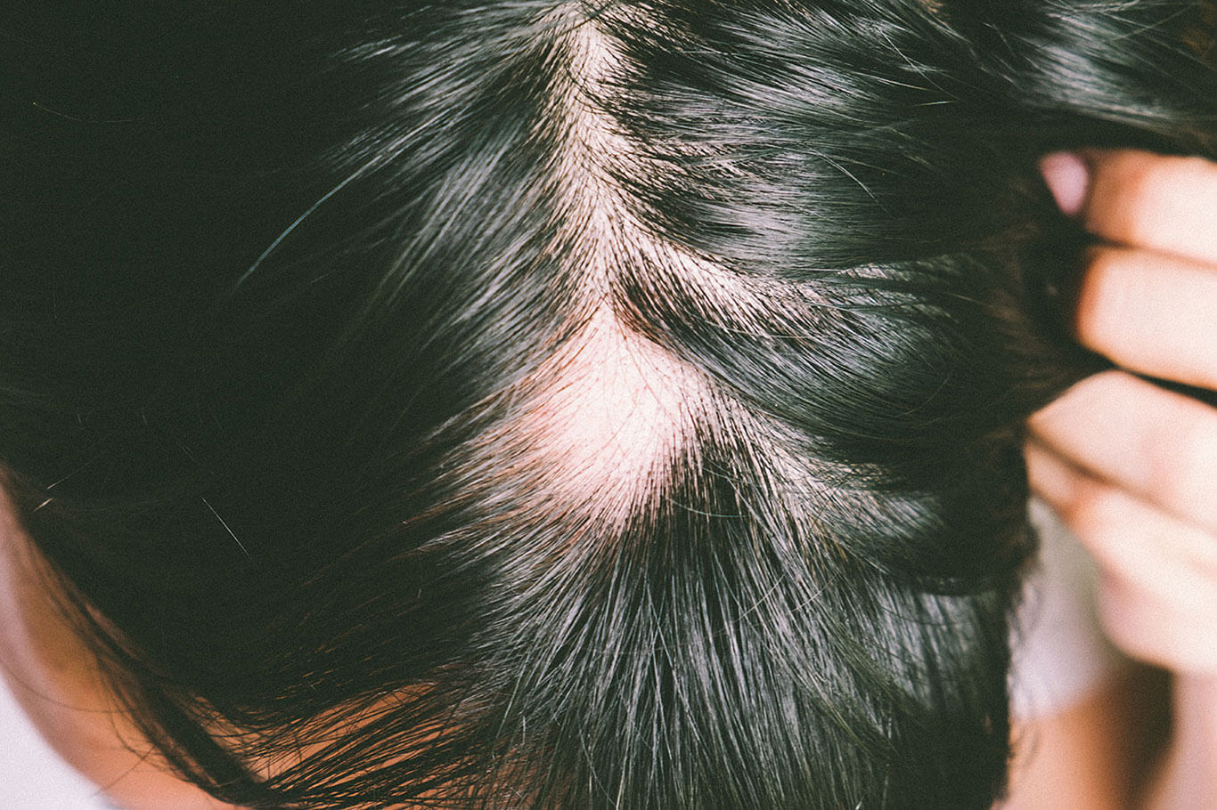 A close-up of the top of the head, showing a small, round patch of hair loss