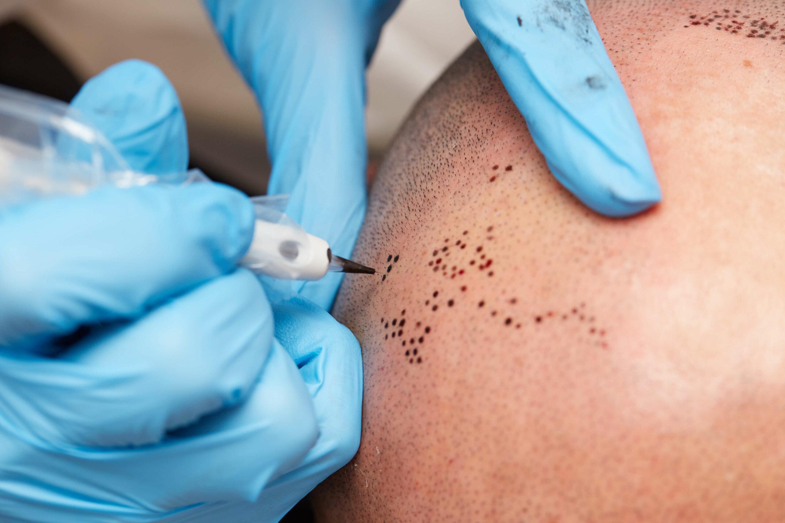A technician performs micropigmentation on a man's scalp