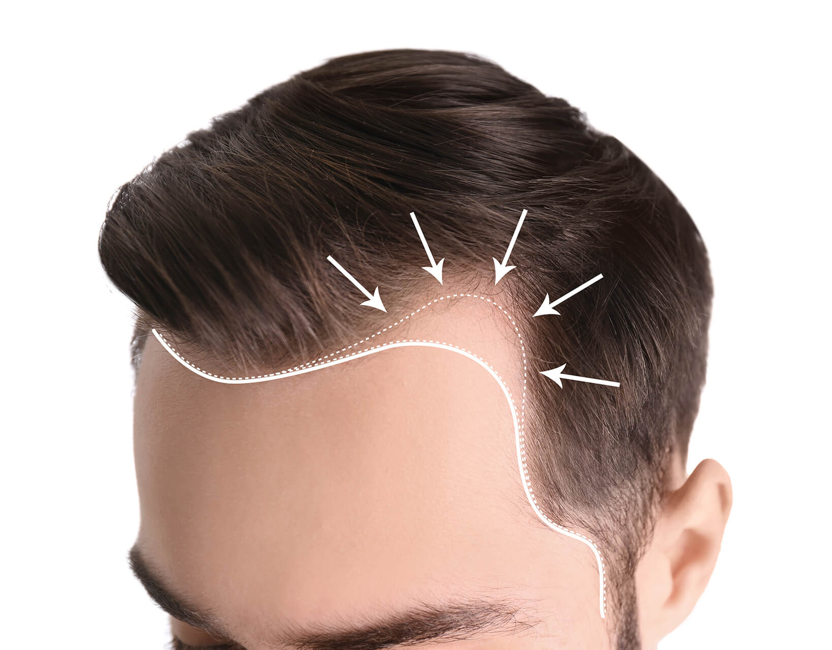 arrows pointing to temple hair loss on a man's head