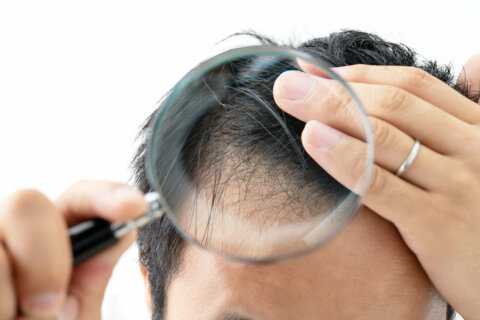 How many hairs are on a human head?