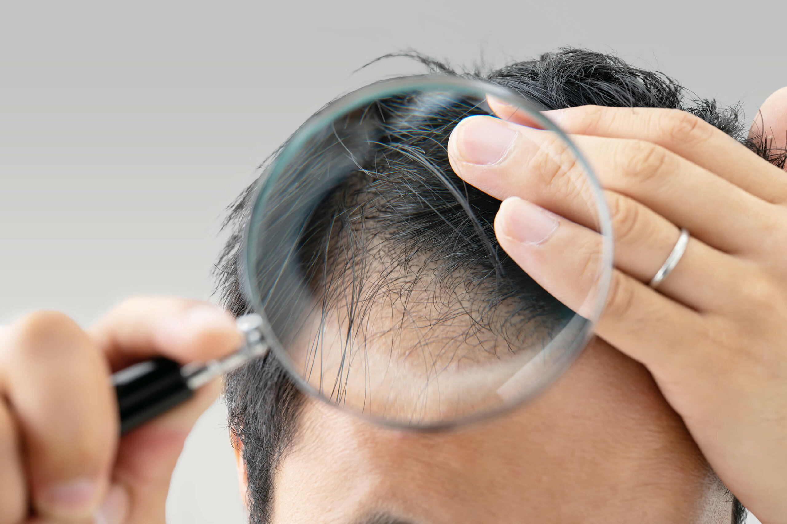 Close up of a man inspecting his hairline with a magnifying glass