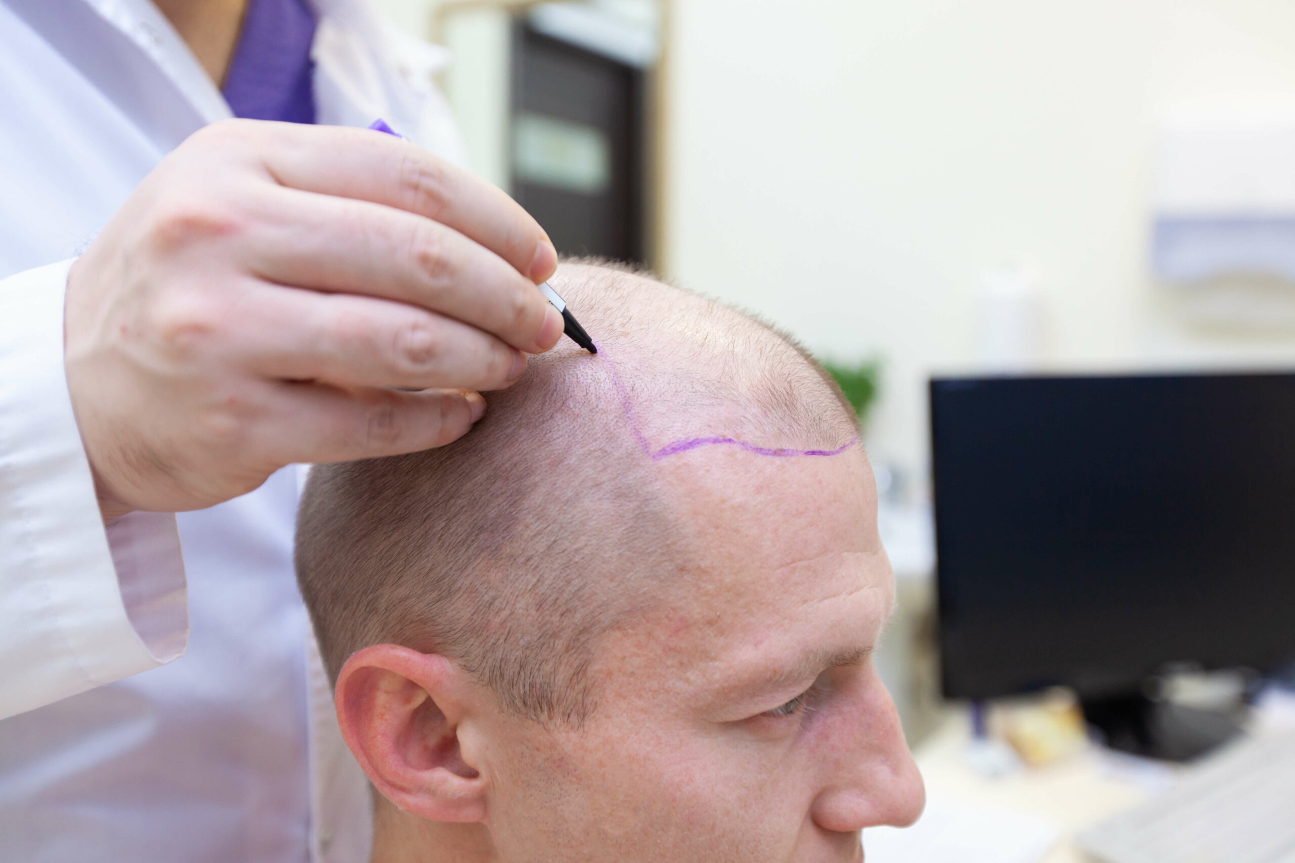 man being prepared for a hair transplantation procedure