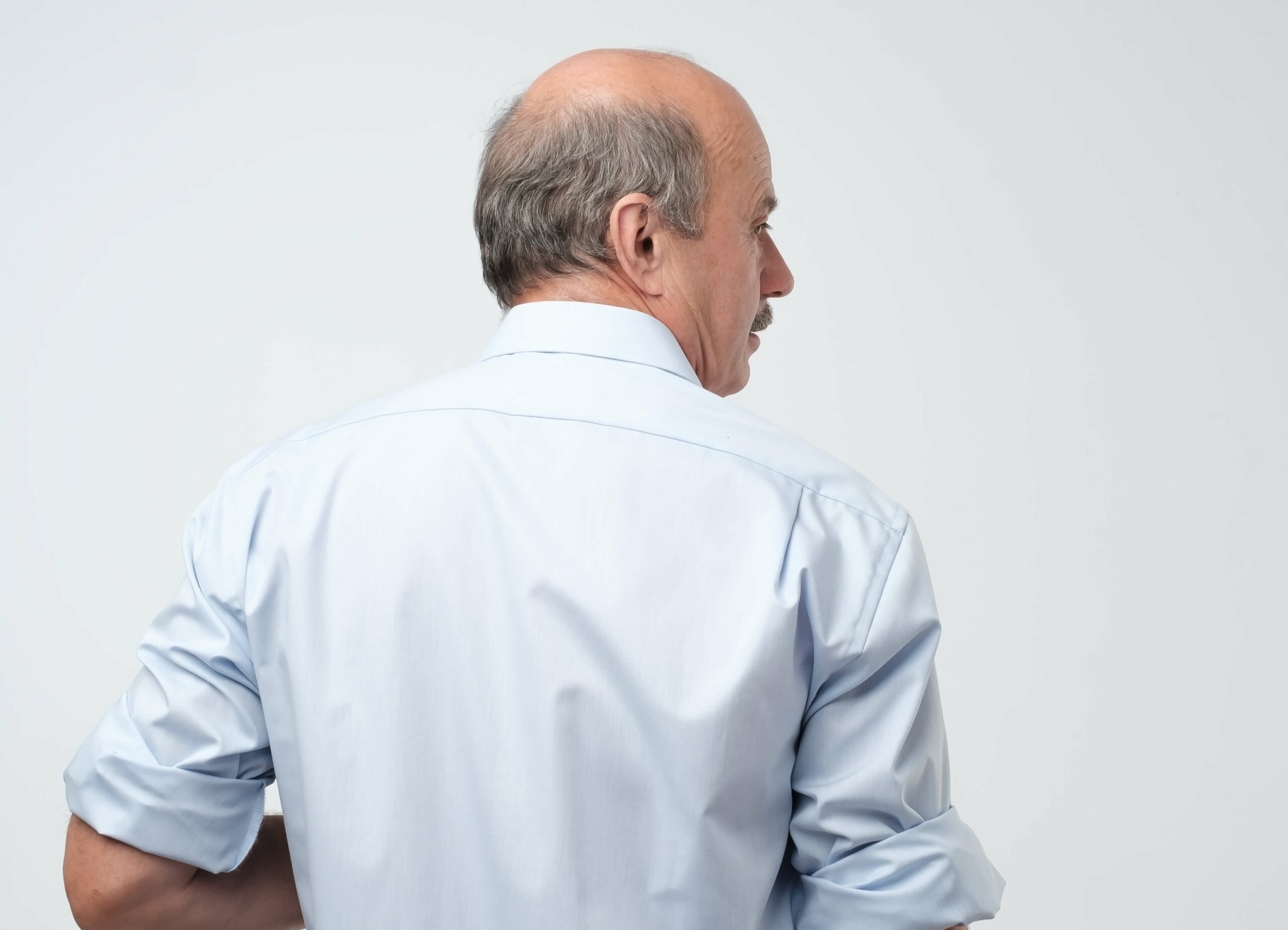 The back of a bald man with his head turned to the right, showing the areas of the scalp that androgenic alopecia affects.