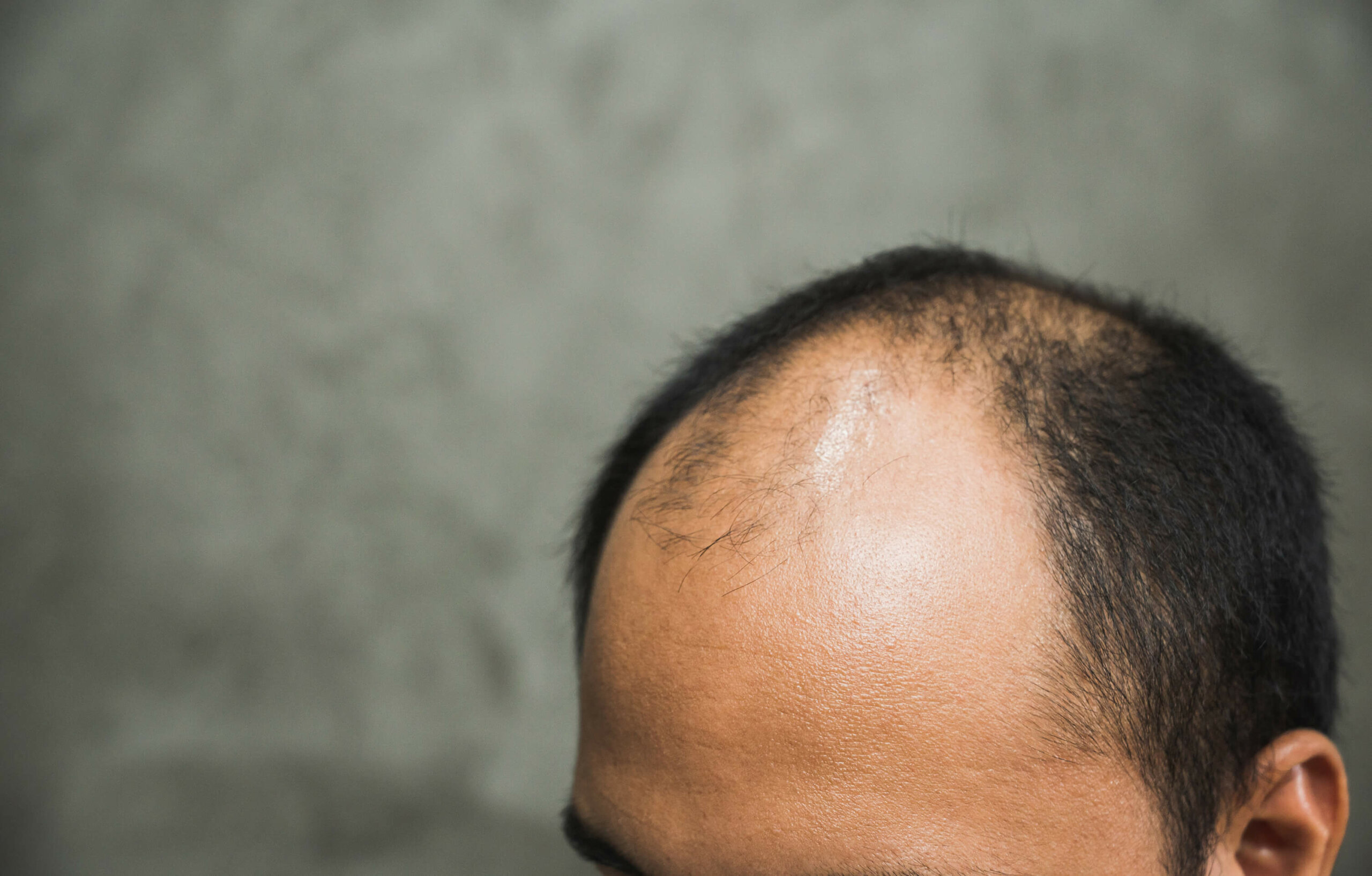 A close-up of an Asian man's head focusing on hair loss affecting both the front and crown of the head