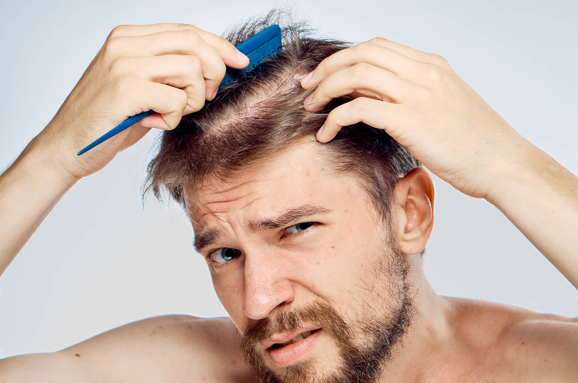 A man, combing his hair, looking at his thinning hair with concern