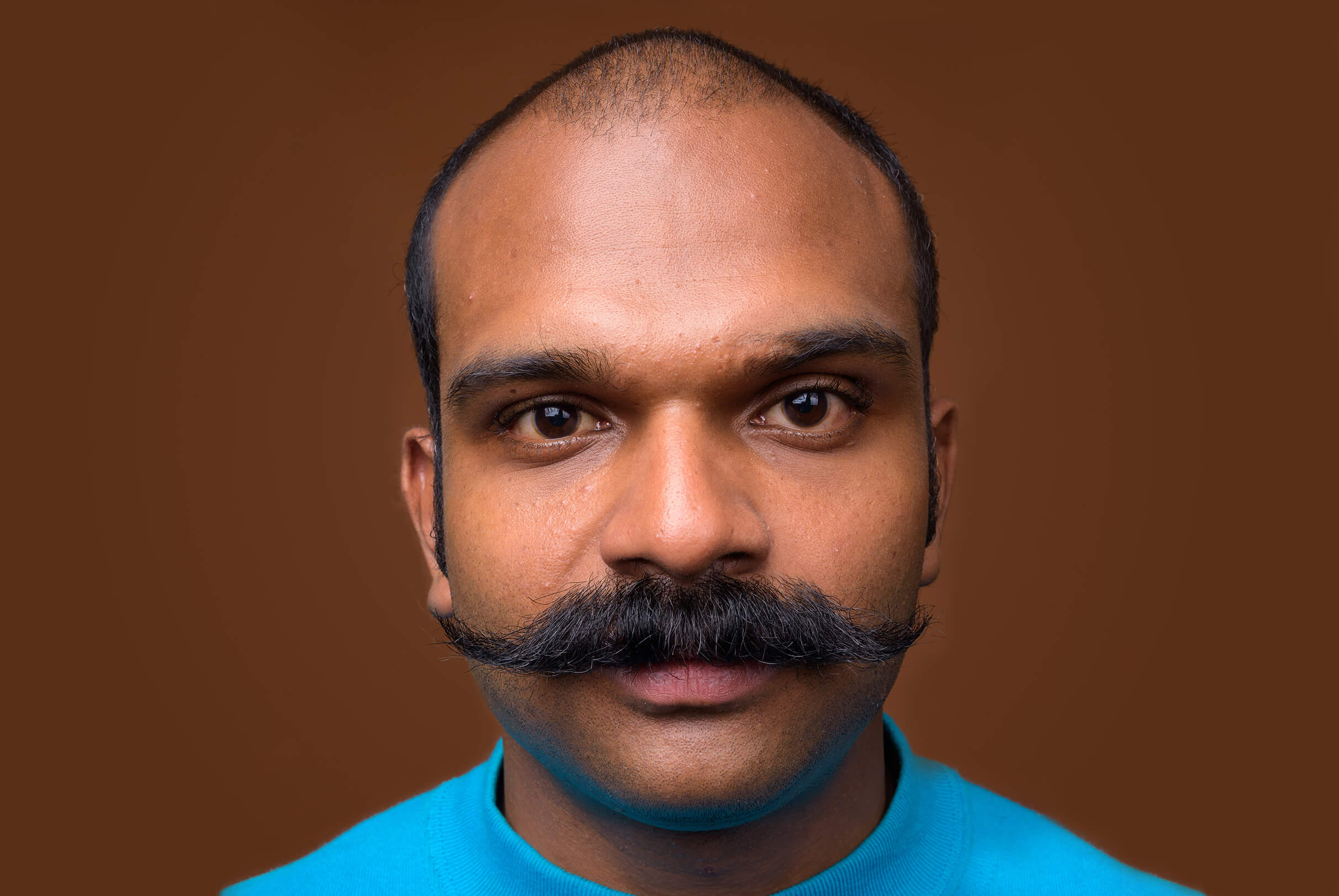 A headshot of a South Asian man with a handlebar style mustache and androgenic alopecia affecting his entire hairline