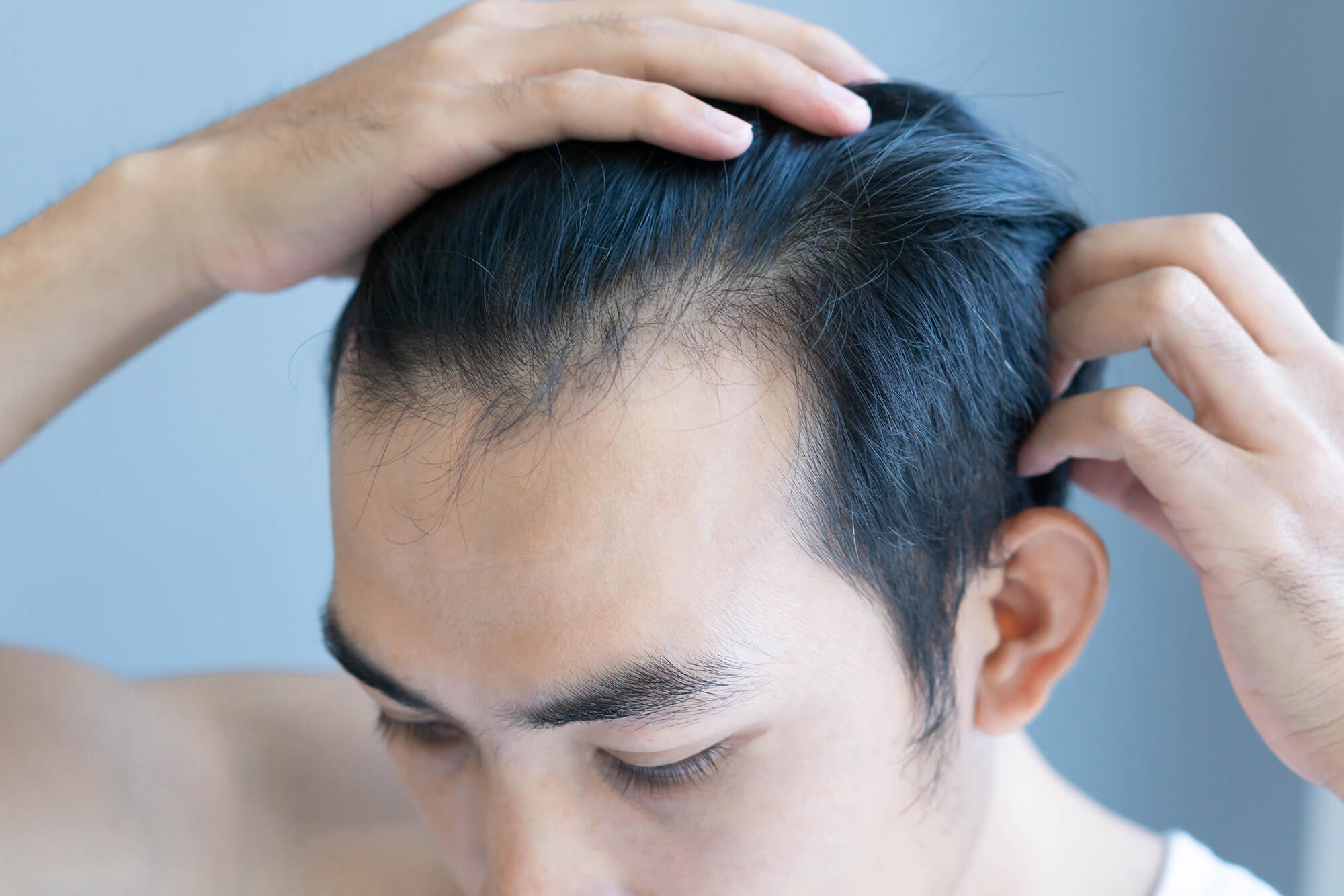 A man pushing his hair back to show his receding hairline