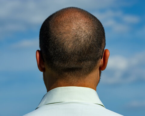 Dealing with a balding crown: why it happens and how to treat it
