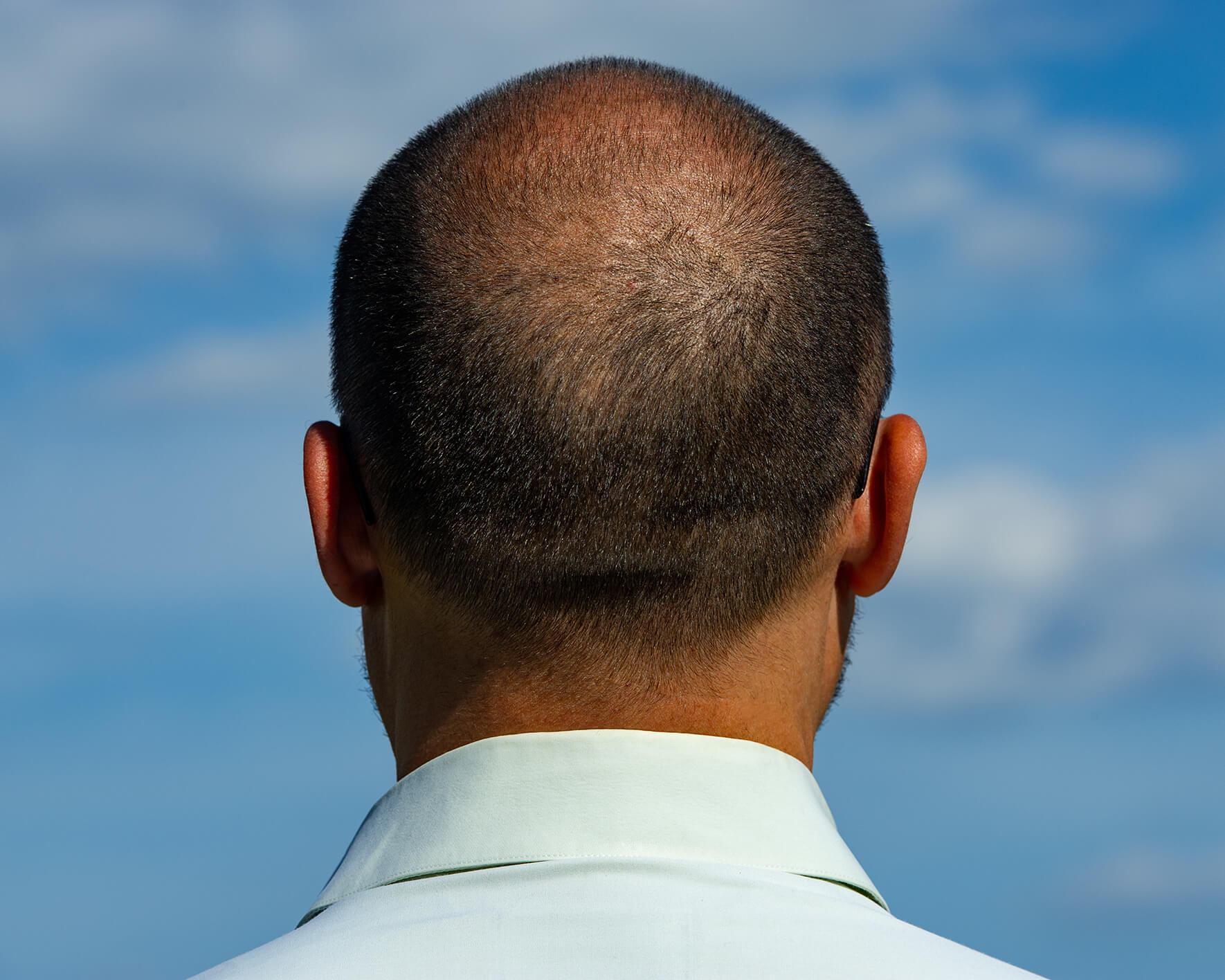 The back of a man's head, showing a balding crown