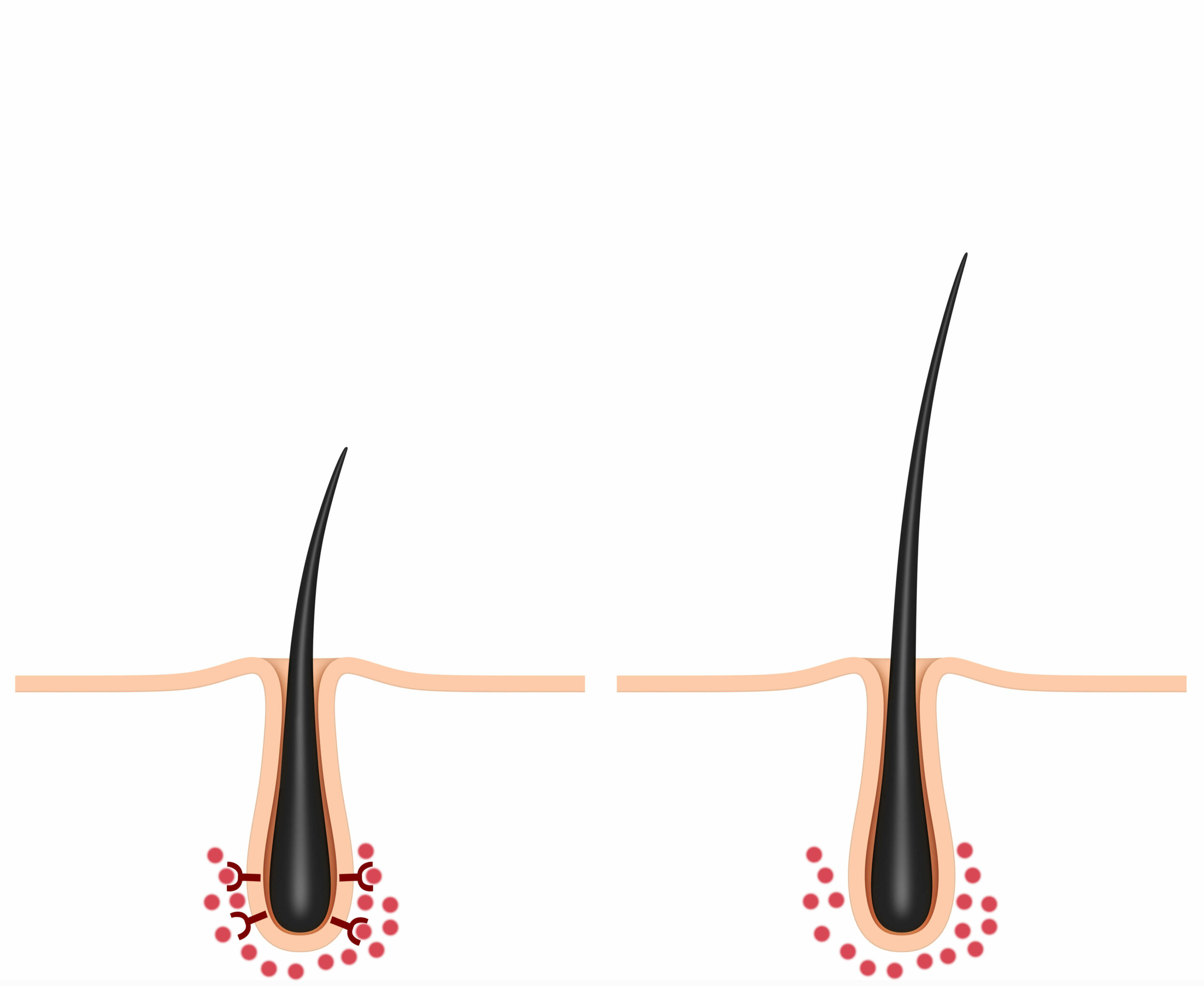 Two hair follicles, one which is smaller and affected by DHT binding to its receptors