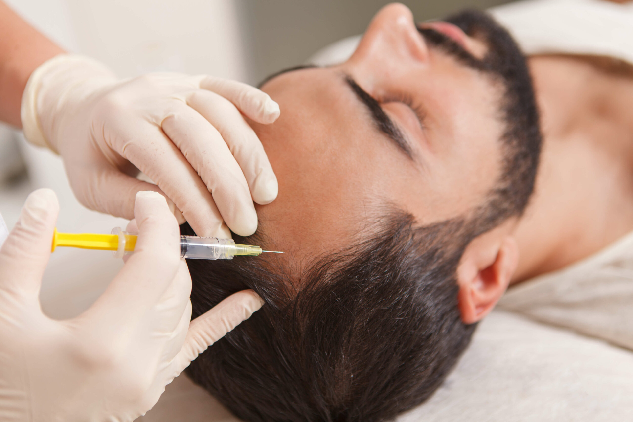 A close-up of a reclined man's head, whose scalp is being administered a PRP injection.