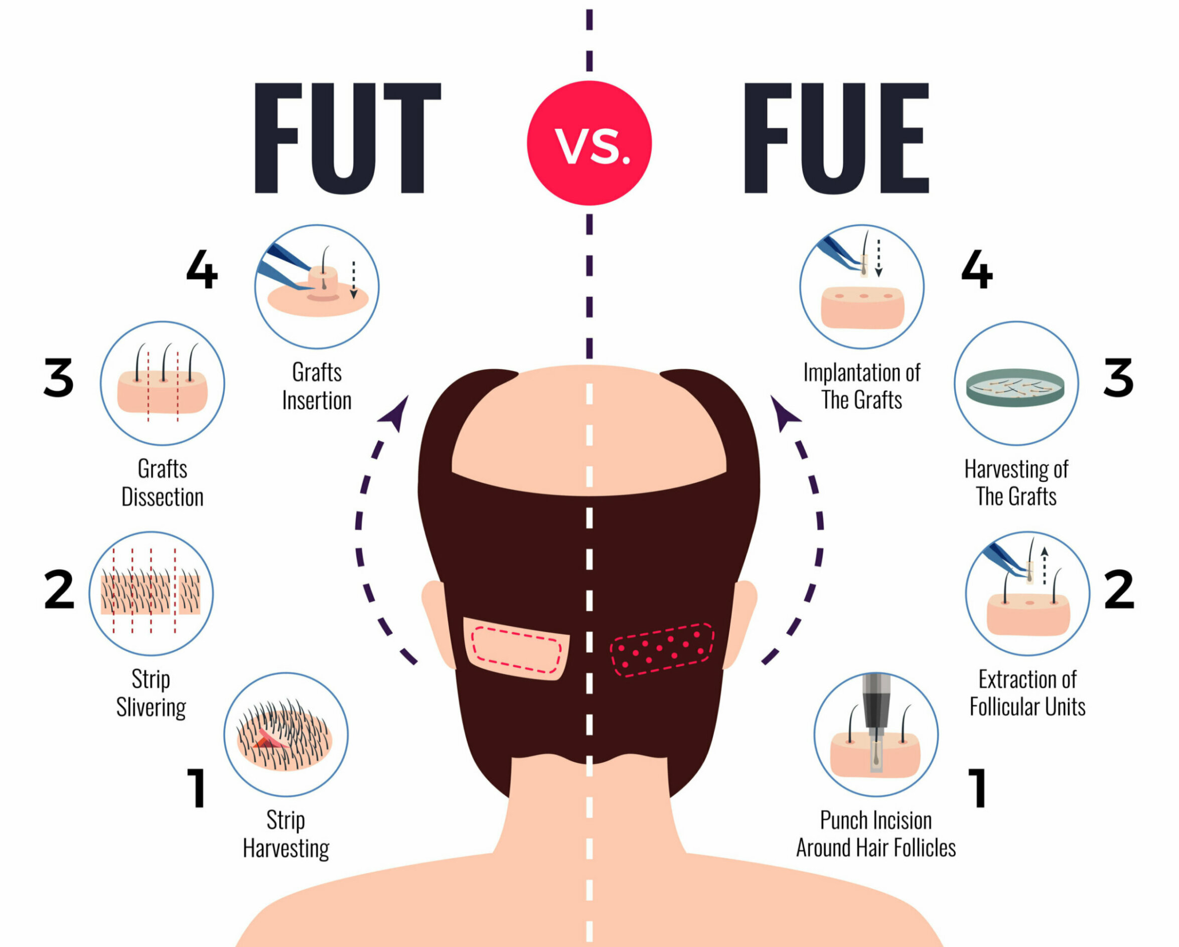 An infographic showing the difference between the hair transplant procedures follicular unit extraction (FUE) and follicular unit transplantation (FUT)