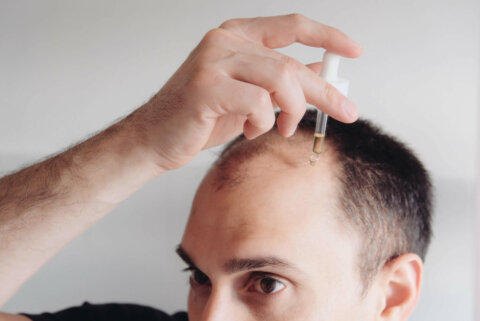 Does minoxidil work for a receding hairline?