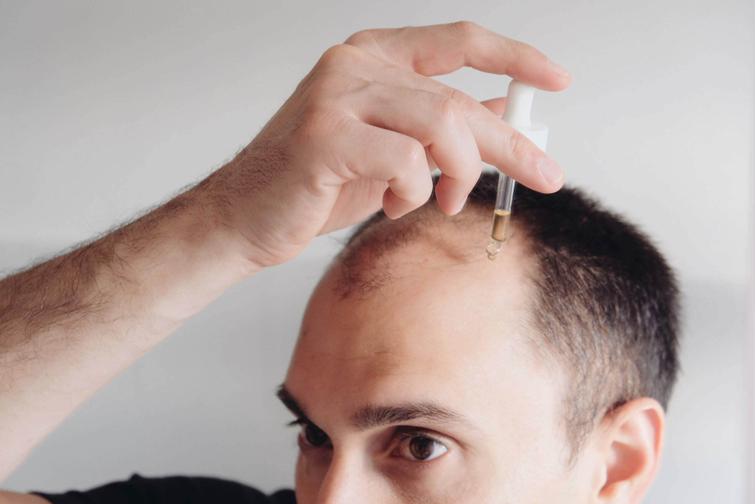 A close up of a man with frontal balding applying minoxidil to his hairline and temples.