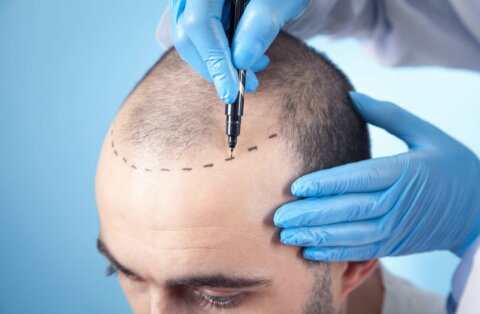 FUT hair transplant (All you need to know)
